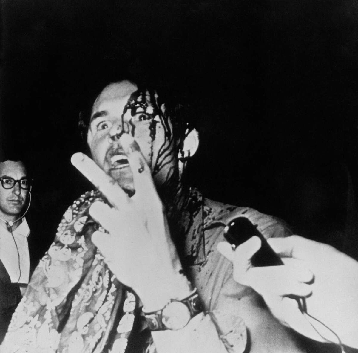 A photgrapher bleeding from a head wound given to him by police during the riots in Grant Park outside the 1968 Democratic National Convention gives the peace sign as he is interviewed in Chicago, Illinois, August 28, 1968. The demonstration, held across the street from Democratic Headquarters hotel, erupted into violence after Chicago police tried to break up the anti-Vietnam War protest.