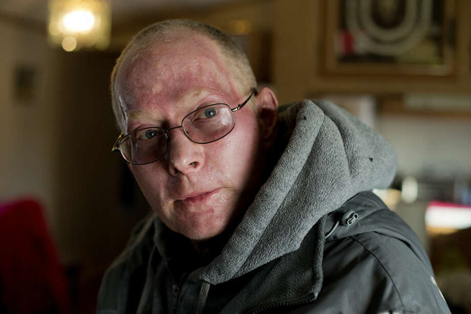 """Dave Mitchell of Beaverton survived a gas explosion in his garage on Oct. 8. """"I was on fire instantly,"""" Mitchell said. The explosion knocked down the walls of the garage. Mitchell suffered injuries to his hands and face, which required skin grafts. Photo: NEIL BLAKE 