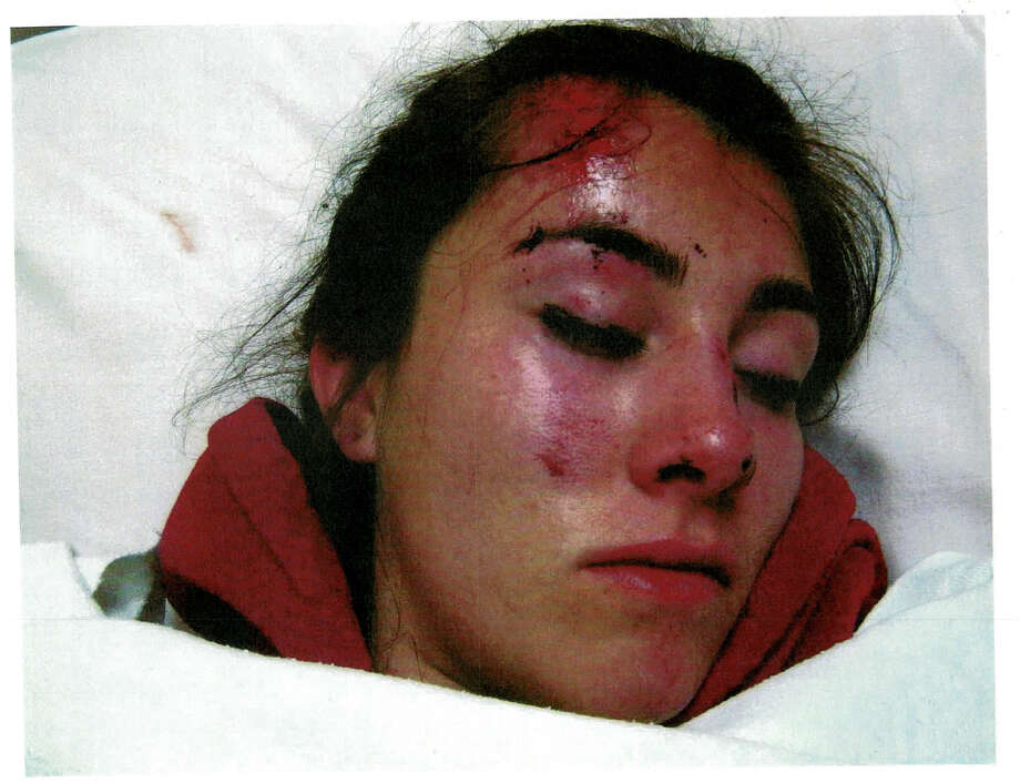 Gabrielle Lemos came away from an encounter with a sheriff's deputy with swelling and bruising on her face. Photo: Izaak Schwaiger / /