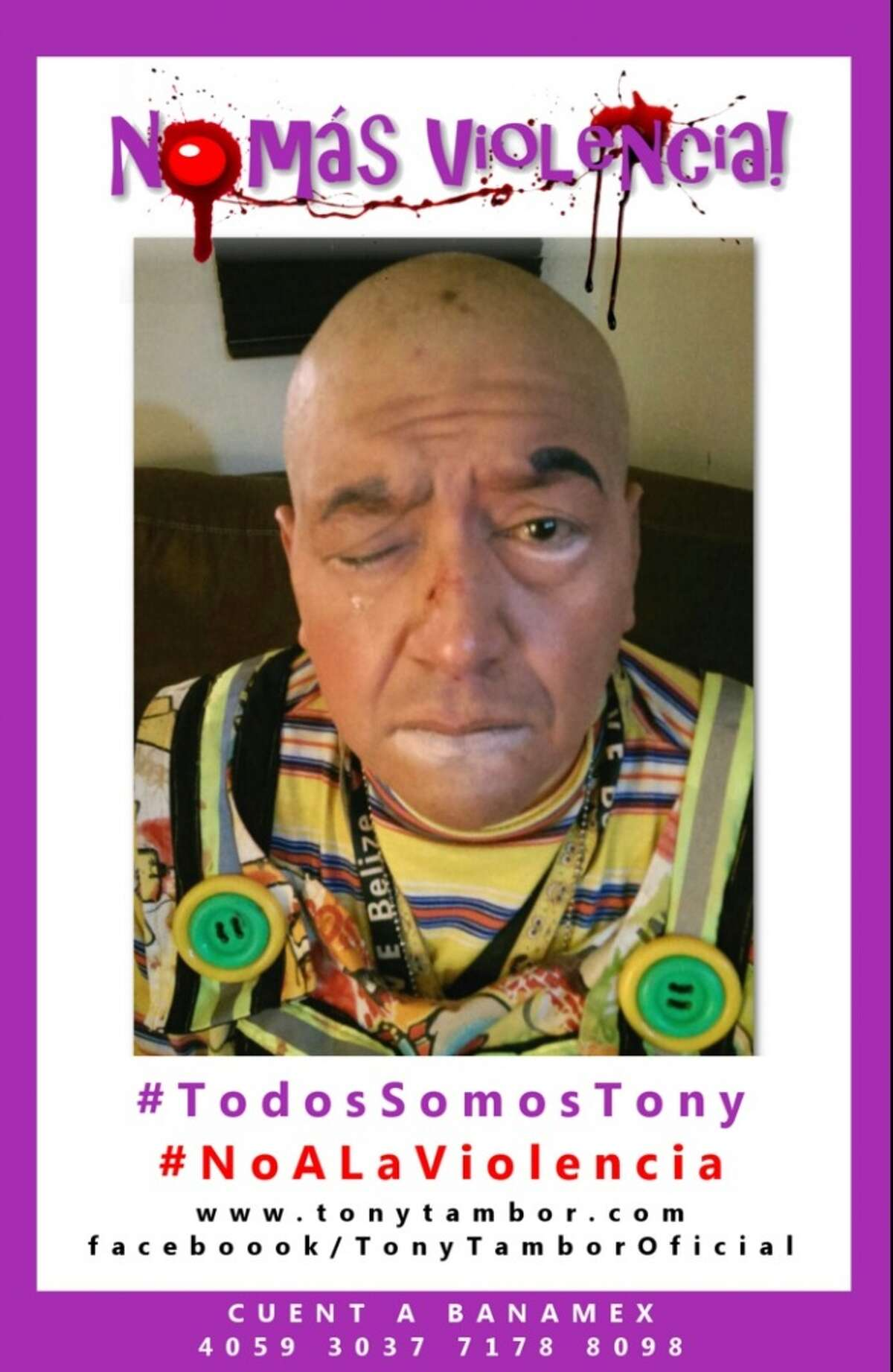 The Mexican clown Tony Tambor took to social media to decry violence against clowns. He was allegedly assaulted during a kids party. Twitter.com/RadioSonora947