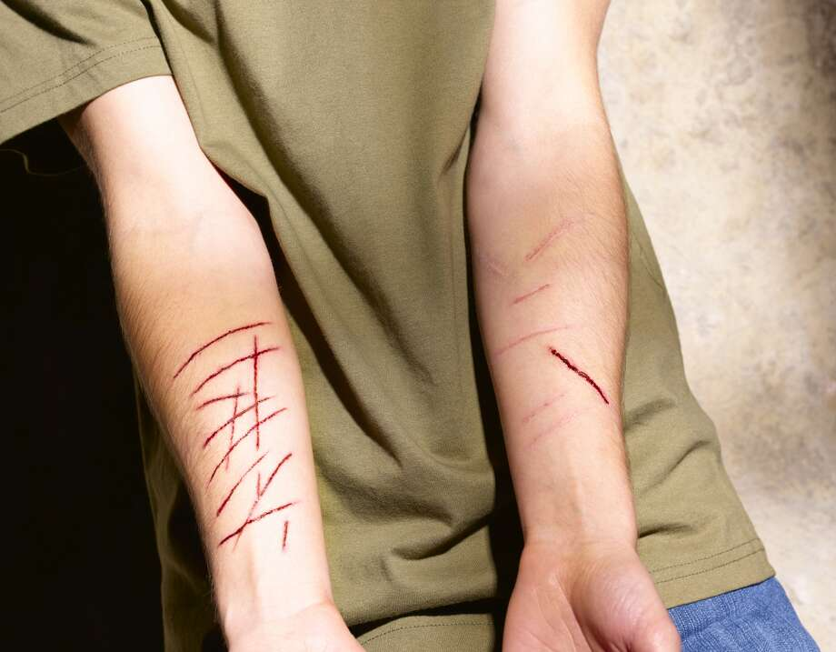 Self-harm is a cry for help from someone who doesn't know how to voice his or her emotions. Photo: Getty Images