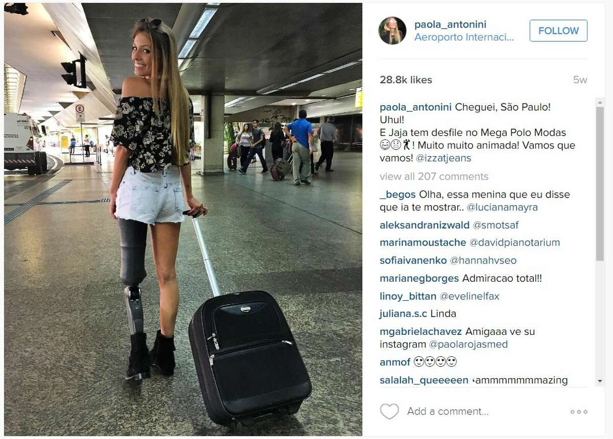 Brazilian model Paola Antonini is inspiring others by sharing photos of herself following the loss of her left leg in a car crash.