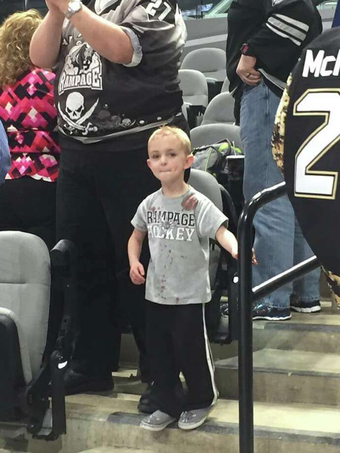 James Evans, 5, back at the AT&T Center on March 27, 2016 right after receiving stitches following a hit by a hockey puck to the head.