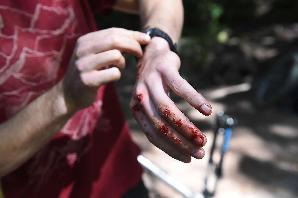 Glenn Fiedler fell off his bike and got scraped up in Marin on Friday, April 1, 2016. Marin County park rangers are starting a new program to use radar guns to monitor, and later to enforce, the 15 mph speed limit for mountain bikers on Marin County open space land.