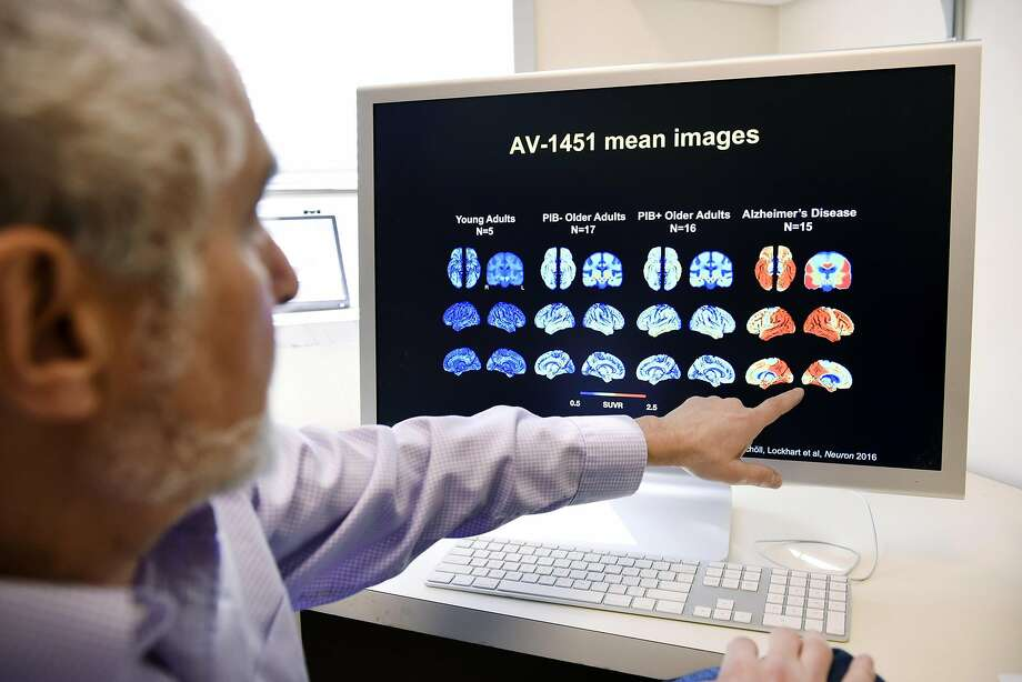 """Dr. William Jagust said brain scans """"opened up a whole new way of doing research"""" on Alzheimer's disease. Photo: Michael Short, Special To The Chronicle"""