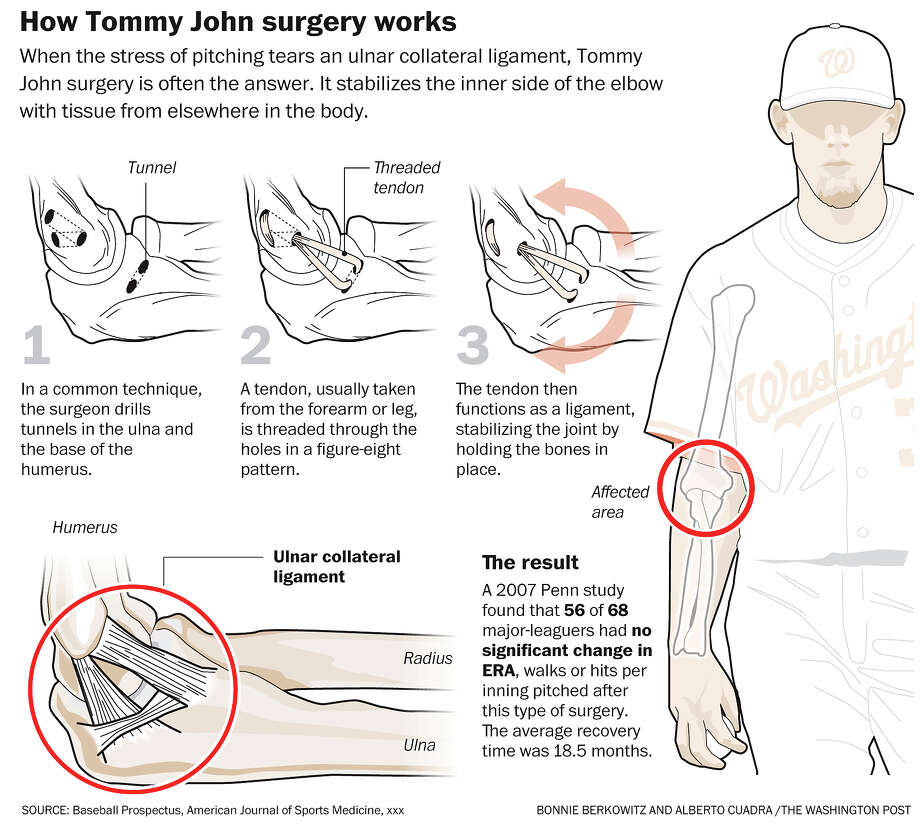 Tommy John surgery explained