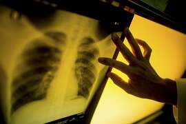 A technician points to a spot on a patient's X-ray that shows signs of tuberculosis infection, in Hanoi, Vietnam, Jan. 27, 2016. The country's stunning progress against deadly tuberculosis is being threatened by reduced funding for a health care system stretched thin. (Justin Mott/The New York Times)