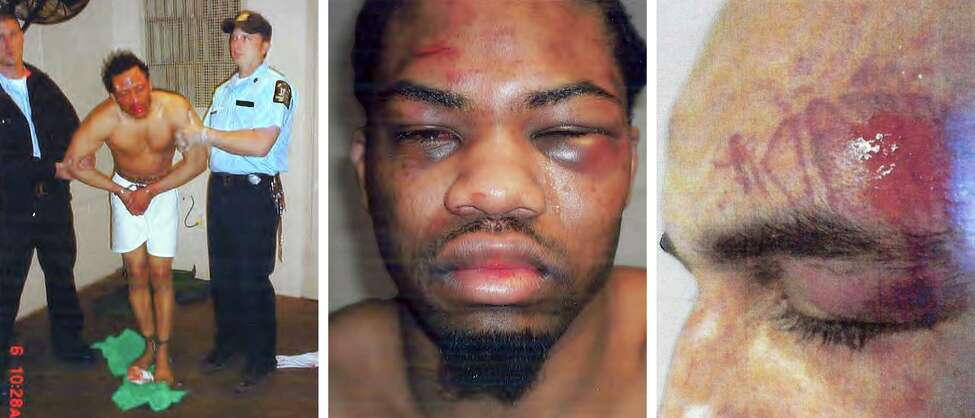 In an undated handout photo combination, Marc Payne, left, Tony Tacheau, center, and Jonathan Rosado, inmates who were beaten by Officer Peter Mastrantonio, who was suspended in November by the Southport Correctional Facility and has been named in 17 brutality lawsuits. The past year has been a bad one for New York State?'s corrections department, with the escape of two convicts in northern New York and a series of federal investigations into brutality by officers. (New York State Department of Corrections and Community Supervision via The New York Times)