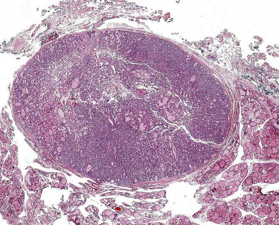 A noninvasive follicular thyroid neoplasm with papillary-like nuclear features, a type of tumor that was previously considered a kind of cancer, has been downgraded by a panel of doctors. Photo: DR. YURI NIKIFOROV, NYT