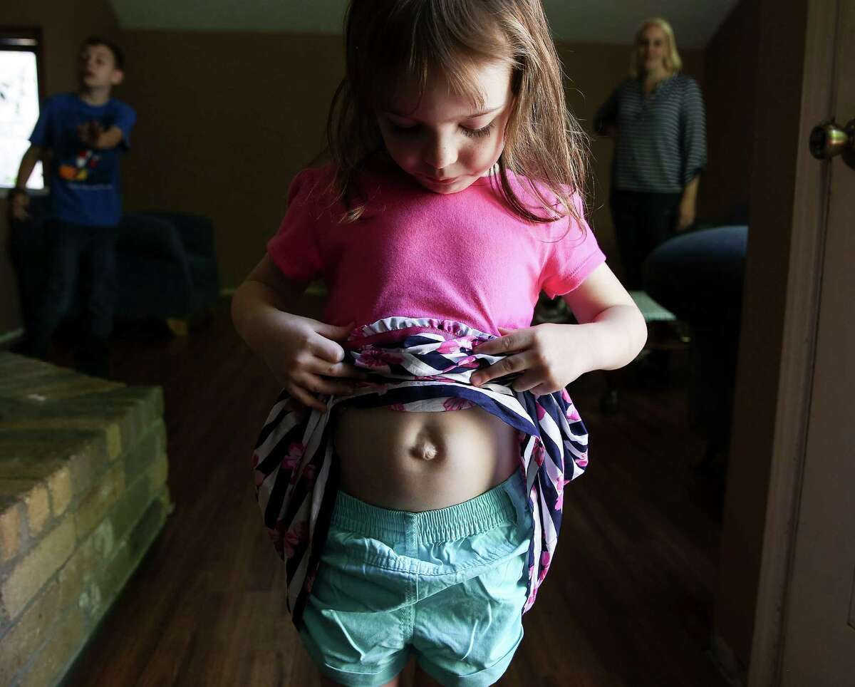 Cassandra Wells, 4, shows her only visible scar from her treatment for gastroschisis.