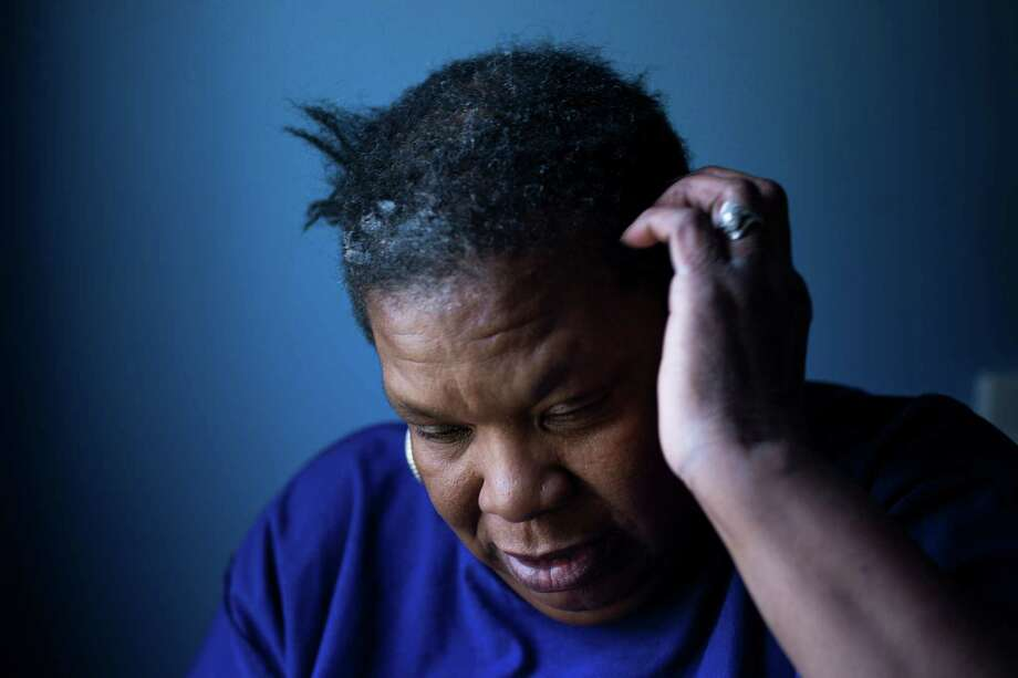 "Maelores Collins, who fears cooking even with filtered tap water, blames the contamination in Flint, Mich., for her hair breaking off over the past six months. ""I'm depressed, I'm angry, my anxiety is running high,"" she said. Photo: BRITTANY GREESON, STR / NYTNS"