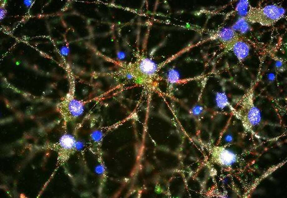 This image provided by Heather de Rivera and made with a fluorescent microscope shows C4 proteins, green, located at the synapses in a culture of human neurons. In research released on Wednesday, Jan. 27, 2016, scientists pursuing the biological roots of schizophrenia have zeroed in on a potential factor _ a normal brain process that gets kicked into overdrive. The finding could someday lead to ways to treat the disease or even prevent it. (Heather de Rivera/McCarroll Lab/Harvard via AP) Photo: Heather De Rivera
