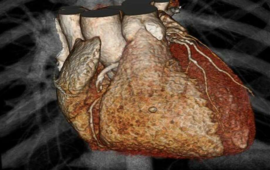 This image provided by Drs. Udo Hoffmann and Michael Lu, of Massachusetts General Hospital, shows a 3-D fast CT scan computer rendering of a heart in a patient who has stable chest pain. According to a federal study released Saturday, March 14, 2015, people checked with a heart CT scan after seeing a doctor for chest pain have no less risk of heart attack, dying or being hospitalized months later than those who take a simple treadmill test or other older exam. (AP Photo/Massachusetts General Hospital, Udo Hoffmann and Michael Lu) Photo: Dr. Udo Hoffman, Dr. Michael Lu