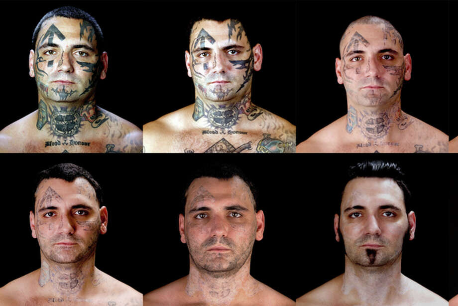 "The above combination of photos provided by Bill Brummel Productions shows the progress of tattoo removal treatments for former skinhead Bryon Widner. For 16 years, Widner was a glowering, swaggering, menacing vessel of savagery - an ""enforcer"" for some of America's most notorious and violent racist skinhead groups. Though his beliefs had changed, leaving the old life would not be easy when it was all he had known - and when his face remained a billboard of hate. (AP Photo/Duke Tribble, Courtesy of MSNBC and Bill Brummel Productions) Photo: Duke Tribble / Bill Brummel Productions"