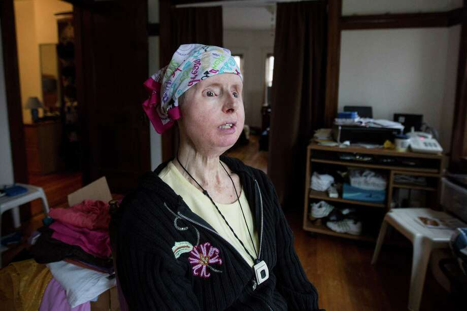 Charla Nash in her home in Boston, Massachusetts on Sunday, May 8, 2016. Nash received a full-face transplant in 2011 after being attacked by a chimpanzee. (Scott Eisen for The Stamford Advocate) / Copyright 2016 Scott Eisen