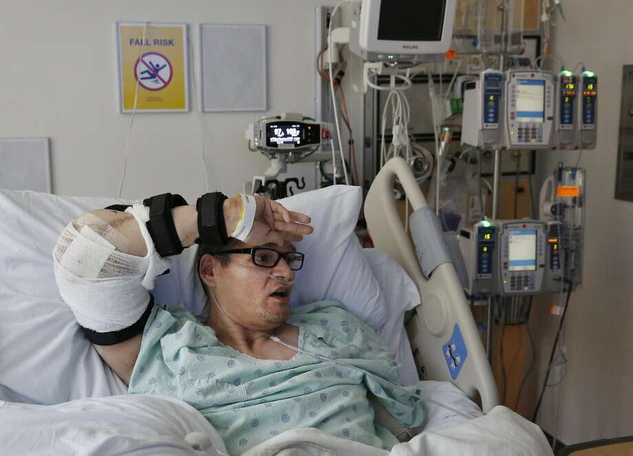 Reginald Cook wipes his brow with the use of his newly transplanted elbow while recovering at UCSF Medical Center. Photo: Leah Millis, The Chronicle