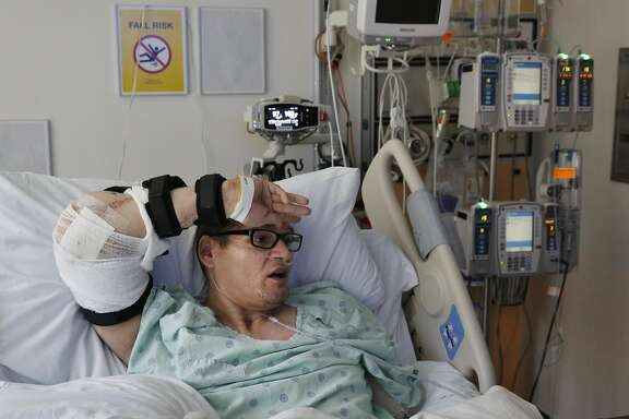 Reginald Cook, 37, wipes his brow with his newly transplanted elbow while recovering in his hospital room at UCSF Medical Center May 13, 2016 in San Francisco, Calif. The motion was something he was incapable of doing himself before the surgery. Cook may be the first person to ever receive an elbow transplant from his own body. A serious car accident rendered his left arm basically useless and his right arm had very limited abilities. Cook asked his doctor if it would be possible to try to transplant his left elbow to his right arm so that he could regain much of the control lost. After months of research and preparation, Cook, who is from Texas, underwent the surgery at UCSF a few weeks ago.