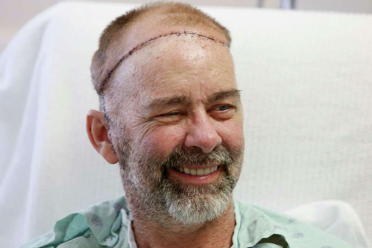 Transplant patient Jim Boysen will be released Thursday after surgeons from Houston Methodist Hospital and MD Anderson Cancer Center performed the world's first skull and scalp May 22. Boysen photographed at Houston Methodist Hospital on Wednesday, June 3, 2015, in Houston.