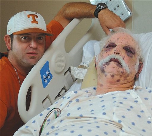 Texas man survives 1,200 bee stings (Warning: Graphic ...