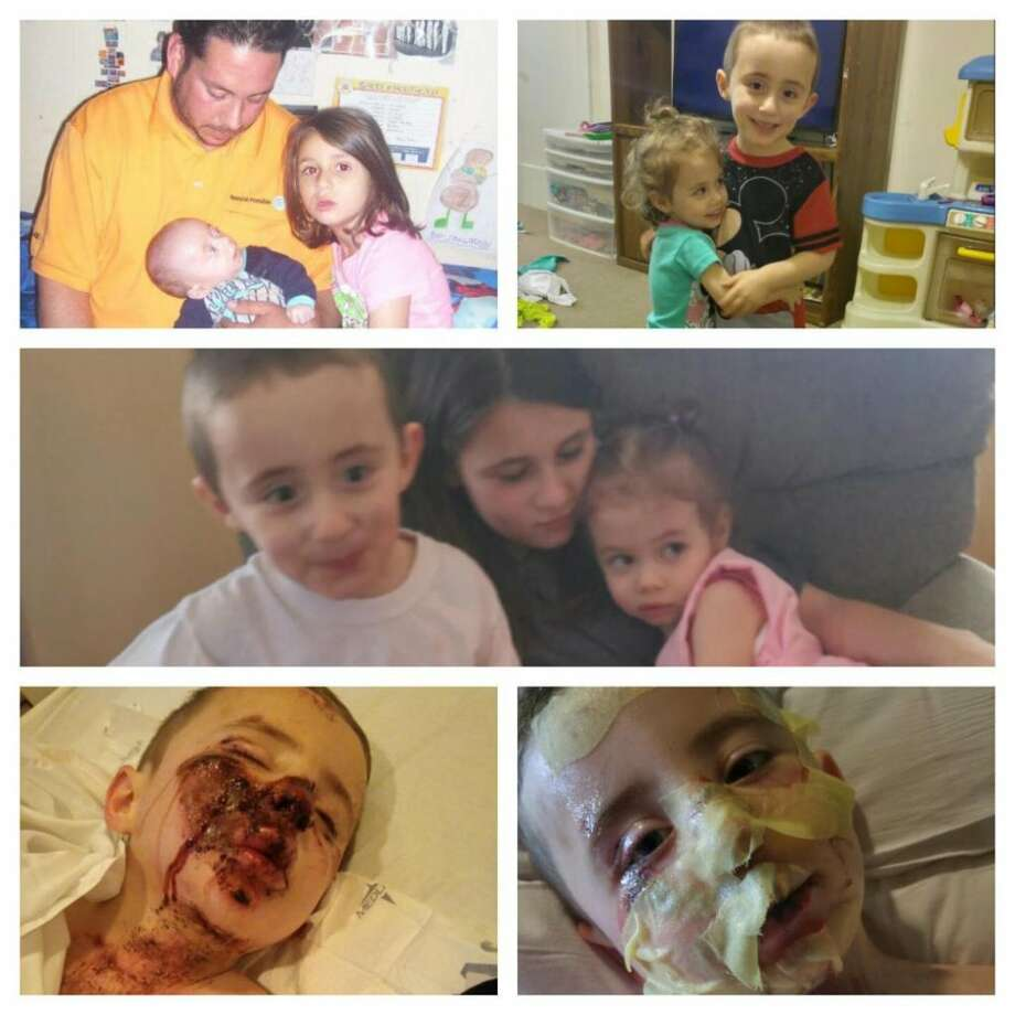 A collage of photos from a GoFundMe page raising money for the family of a New Milford man who died from injuries suffered in an ATV accident last week shows Matthew Bigbie with his children and his son Mason's injuries. Photo: / I4+nqcSdsEydqBqRylVmJ4eGv9ibtE8w7OVh /7kZg20uNkH+LcktutndRpoOYTheELOcCYHsS9sQLh1R+smeEA==