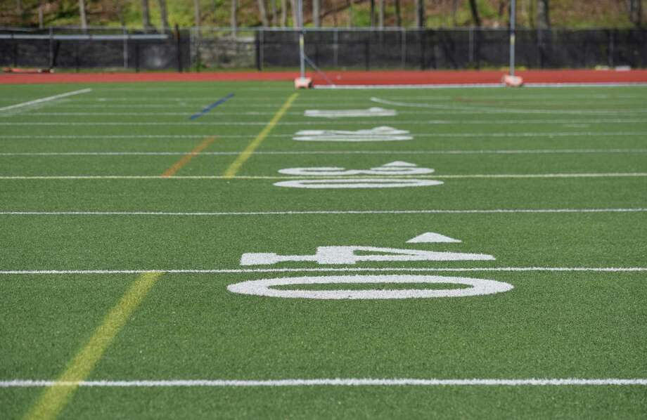 artificial turf a dangerous playing surface essay Sportswatch — sports fields: artificial turf vs playing on artificial turf can be more dangerous than playing on the playing surface is also a lot.