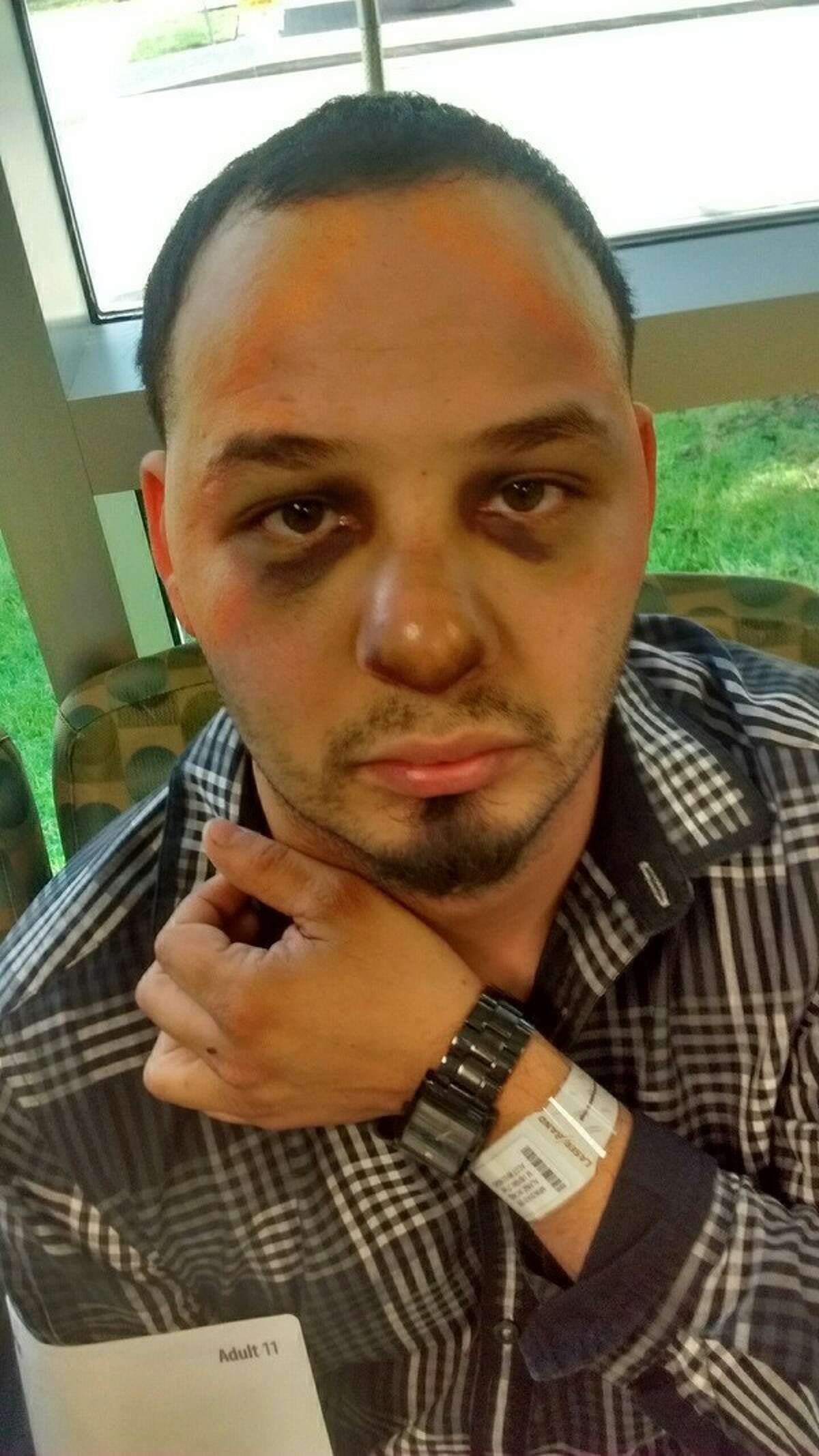 Photos show Michael Alaniz four days after he says he was beating in the Harris County jail by two jailers. A lawsuit was announced Friday, May 27, 2016.