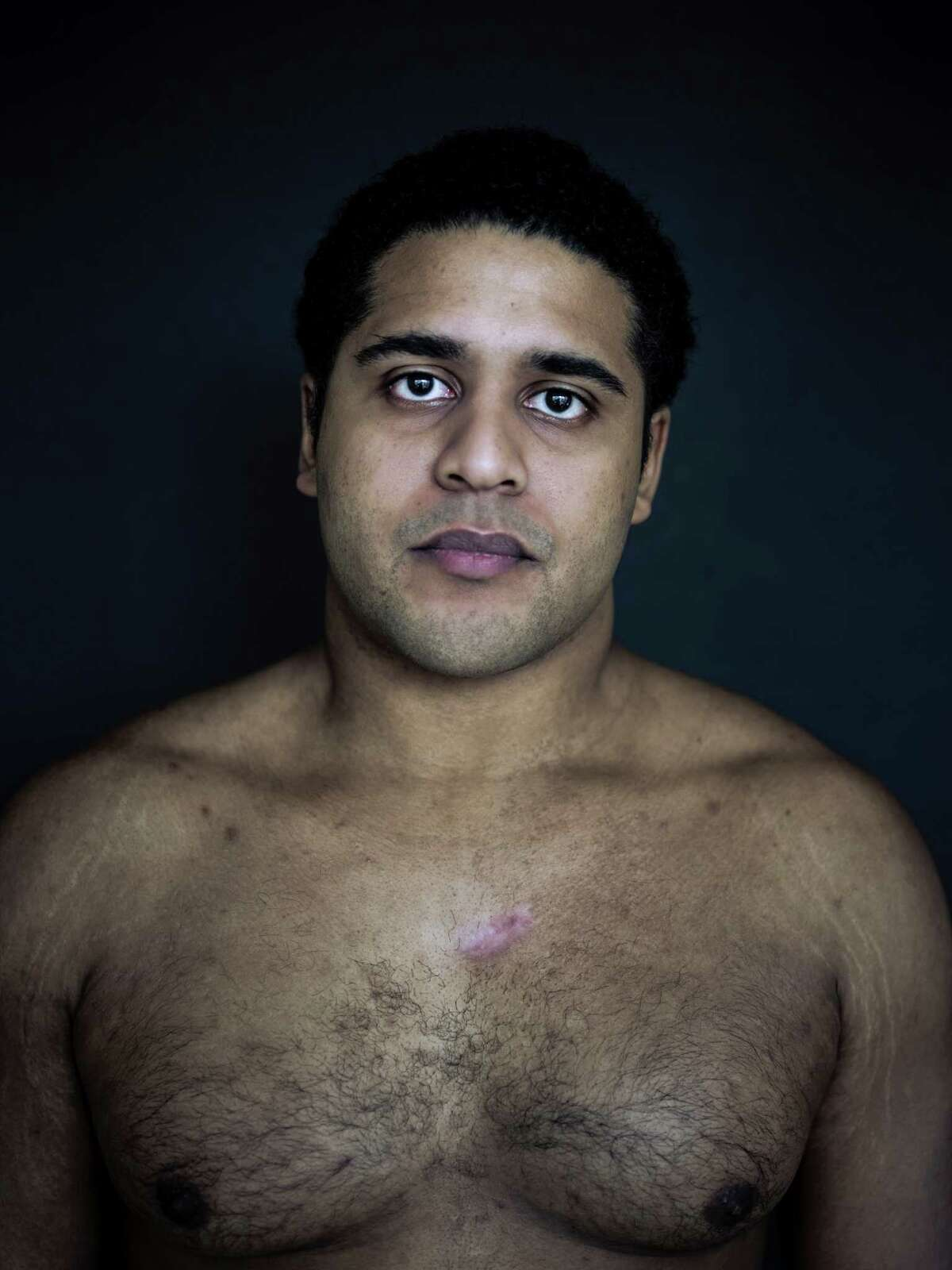 Alan Pean, who was shot in by Houston police inside St. Joseph Medical Center, shows the scar on his chest in this photograph taken in January.