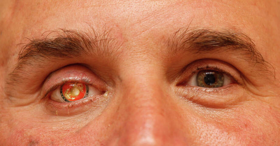 """In this Monday, Sept. 17, 2012 file photo, Nick Popaditch, a Republican congressional candidate in the California's 53rd District, poses for a photo showing his Marine Corps insignia in his right eye in La Mesa, Calif. Popaditch, who was injured in Iraq on April 7, 2004, when shrapnel tore through his sinuses and destroyed his right eye, says, """"...if the bad guys come back into control, that's not something I can control 8,000 miles away here. I'm just proud of the fact that when it came time to stand and fight for those things, those concepts of freedom, liberty, human rights ... I'm glad my nation did it."""" (AP Photo/Lenny Ignelzi) / AP"""