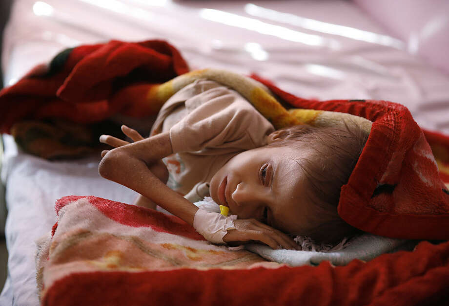 In this Sunday, Jan. 24, 2016 photo, a malnourished child lies in a bed waiting to receive treatment at a therapeutic feeding center in a hospital in Sanaa, Yemen. This child is one of millions of people across countries like Syria, Yemen and Iraq are gripped by hunger, struggling to survive with little help from the outside world. (AP Photo/Hani Mohammed)