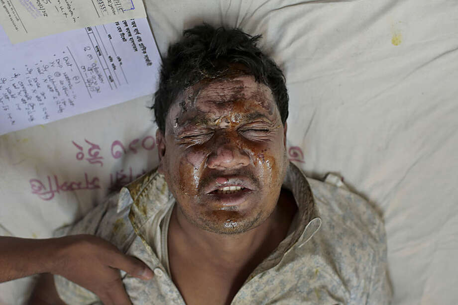 Hanif, 35, one of the victims of a pre-dawn fire bomb attack on a bus cries in pain as he receives treatment at the Medical College hospital in Dhaka, Bangladesh, Tuesday, Feb. 3, 2015. Attackers threw crude fire bombs at a packed bus early Tuesday morning, setting it alight as it moved along a Bangladesh highway and leaving at least seven people dead and 16 injured amid a nationwide strike called by the opposition. The incident happened in Comilla district, about 90 kilometers (55 miles) east of the capital.(AP Photo/ A.M. Ahad)