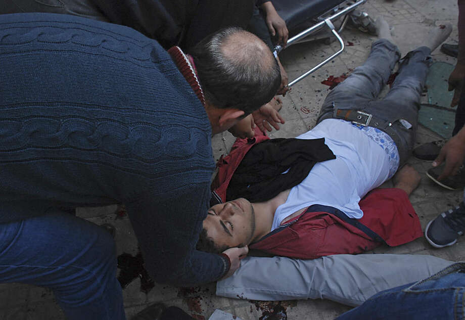 A wounded man is evacuated from the site of an explosion in a crowded area near the Egyptian High Court, in downtown Cairo, Egypt, Monday, March 2, 2015. Egyptian state TV says a midday bomb blast in downtown Cairo wounded several people. Egypt has seen a series of attacks mainly targeting security forces since the military ousted Islamist President Mohammed Morsi in the summer of 2013. The attacks have raised fears ahead of an economic conference later this month aimed at attracting foreign investment. (AP Photo/Mohammed Ashraf)