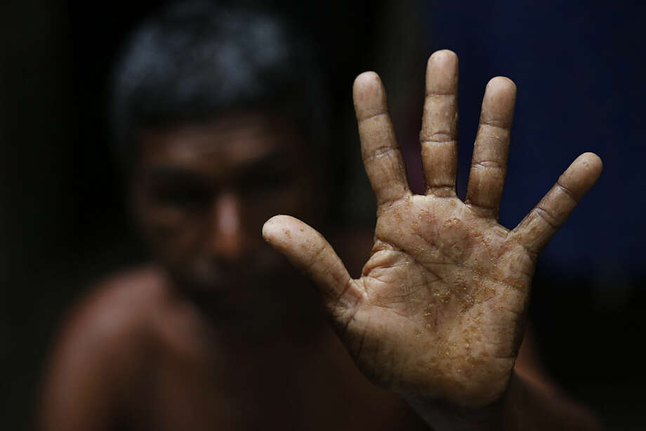 In this April 1, 2016 picture, Bangladeshi man Shukkur Ali, 58, shows his palm, filled with warts caused by years of drinking arsenic-tainted water, at his village in Sonargaon, outskirts of Dhaka. A new report estimates that some 20 million Bangladeshis are still being poisoned by arsenic-tainted groundwater drawn from government wells. That number remains unchanged from 10 years ago, despite years of action to dig new wells. (AP Photo/A.M. Ahad)