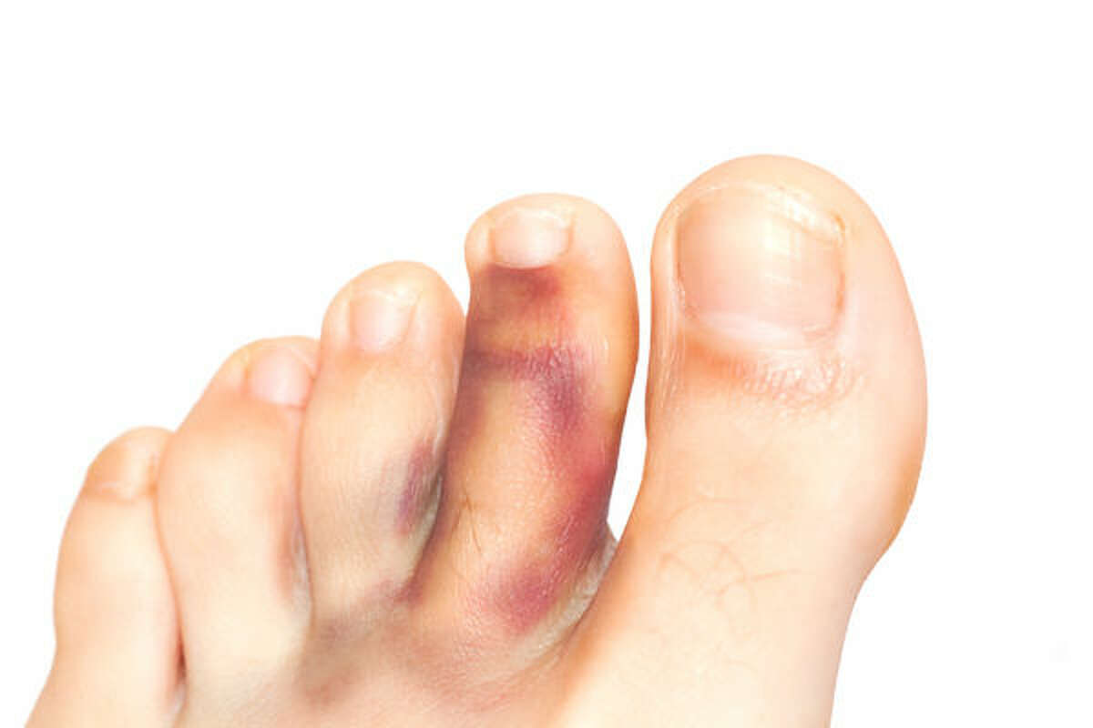 4 Signs Your Foot or Ankle is Overused or Injured