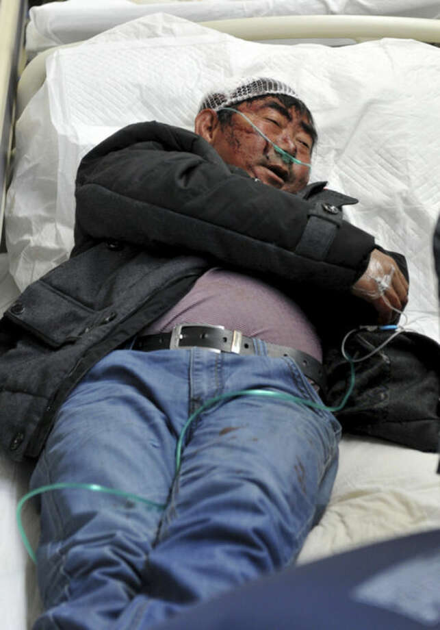 In this photo provided by China's Xinhua News Agency, an injured man from a knife attack lies on the bed as he receives treatment at the First People's Hosptial of Kunming in Kunming, capital of southwest China's Yunnan Province, Sunday, March 2, 2014. More than 10 assailants slashed scores of people with knives at the train station in southern China in what officials said Sunday was a terrorist assault by ethnic separatists from the far west. Twenty-nine slash victims and four attackers were killed and 143 people wounded. (AP Photo/Xinhua, Lin Yiquang) NO SALES