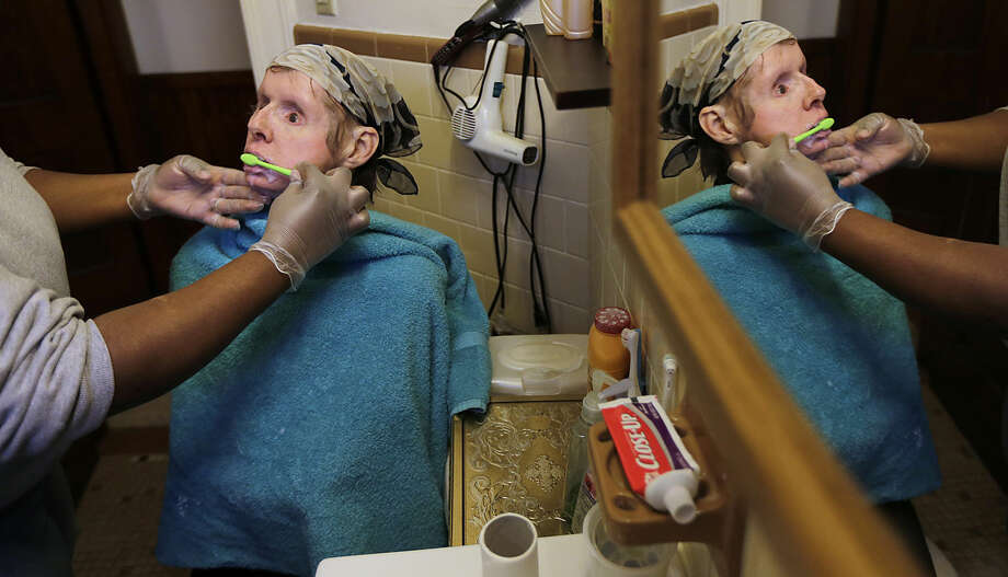 In this Friday, Feb. 20, 2015 photograph, a care worker brushes Charla Nash's teeth, which were provided by an organ donor along with her face, at her apartment in Boston. The Department of Defense is following Nash's progress, after funding her transplant surgery in 2011. Nash lost her face, eyes and hands after being mauled by a chimpanzee in 2009. (AP Photo/Charles Krupa)