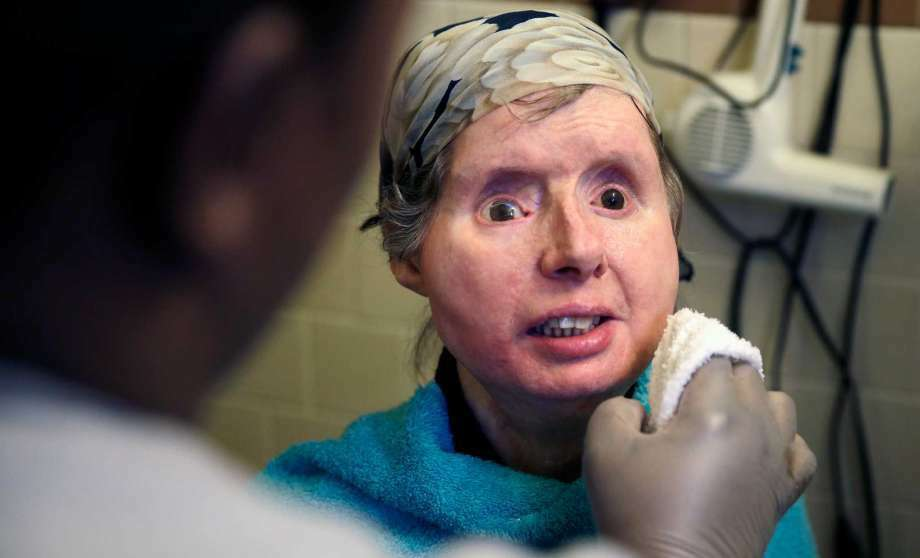 FILE - In this Feb. 20, 2015 file photo, Charla Nash smiles as her care worker washes her face at her apartment in Boston. The Connecticut woman who underwent a face transplant five years ago after being attacked by a chimpanzee is back in a Boston hospital after doctors discovered her body is rejecting the transplant. Nash says doctors have decided to end an experimental drug treatment and put her back on her original medication in the hopes of reversing the rejection. (Photo: Charles Krupa, AP)