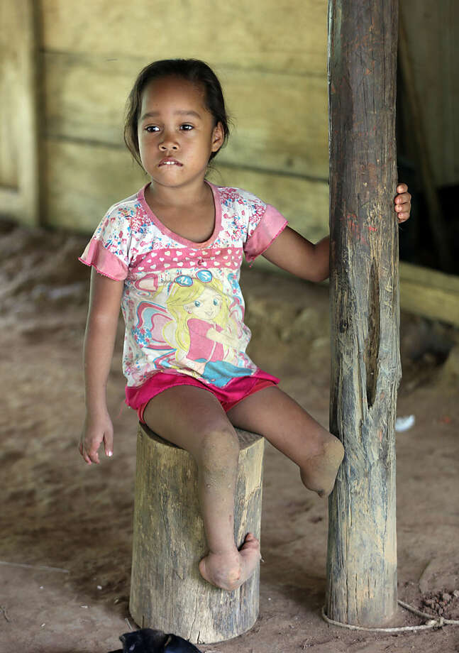 In this Monday, May 11, 2015 photo, Joani Londono, 5, who was born with a club foot and a missing leg, sits at her home in in Crucito, in Colombia's northwestern state of Cordoba. Joani's mother, Adevis Edith Diaz, claims the girl was born premature and she began to have pregnancy problems after she ate vegetables from a plot fumigated with chemicals from a plane. Research published last year by Daniel Mejia, an expert adviser to Colombian President Juan Manuel Santos on drug policy, found higher rates of skin problems and miscarriages in districts targeted by herbicides. It was based on a study of medical records from 2003 to 2007. (AP Photo/Fernando Vergara)