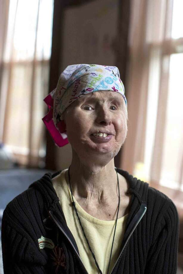 Charla Nash in her home in Boston, Massachusetts on Sunday, May 8, 2016. Nash received a full-face transplant in 2011 after being attacked by a chimpanzee. (Scott Eisen for The Stamford Advocate)