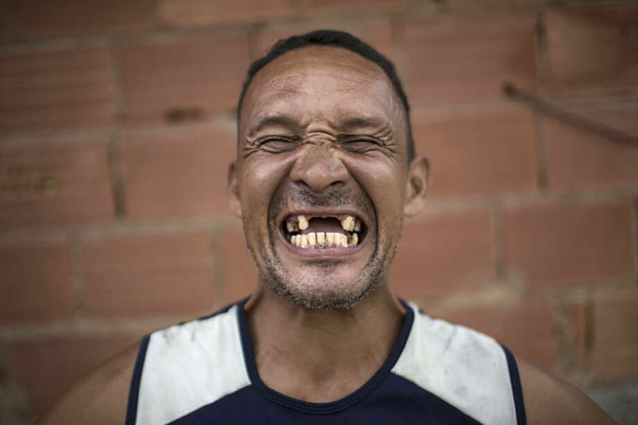 In this May 9, 2014 photo, former drug user Renato Souza, 44, smiles for the camera at the God's Love rehabilitation center in Rio de Janeiro, Brazil. (AP Photo/Felipe Dana)
