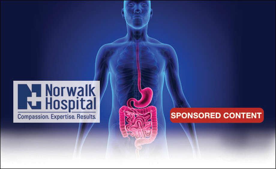 Optimizing digestive health
