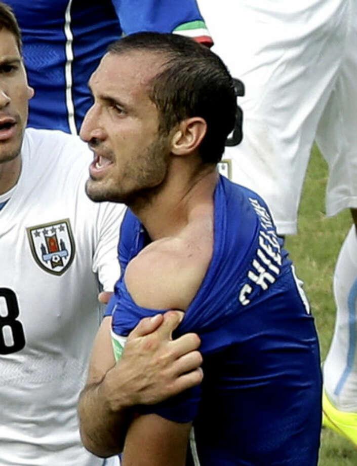 Norwegian wins bet on Suarez World Cup bite
