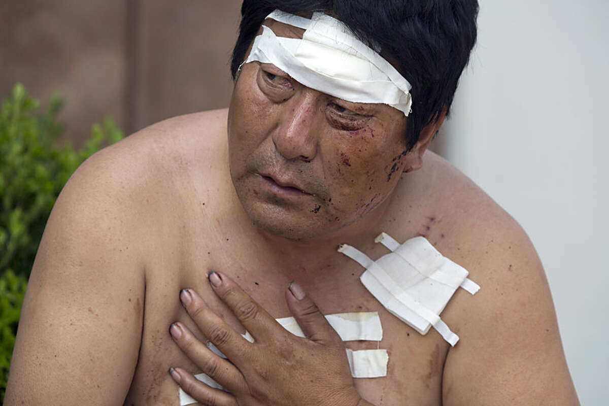 A man with his wounds bandaged rests outside a hospital receiving victims of an explosion in northeastern China's Tianjin municipality, Thursday, Aug. 13, 2015. Huge explosions in the warehouse district sent up massive fireballs that turned the night sky into day in the Chinese port city of Tianjin, officials and witnesses said Thursday. (AP Photo/Ng Han Guan)