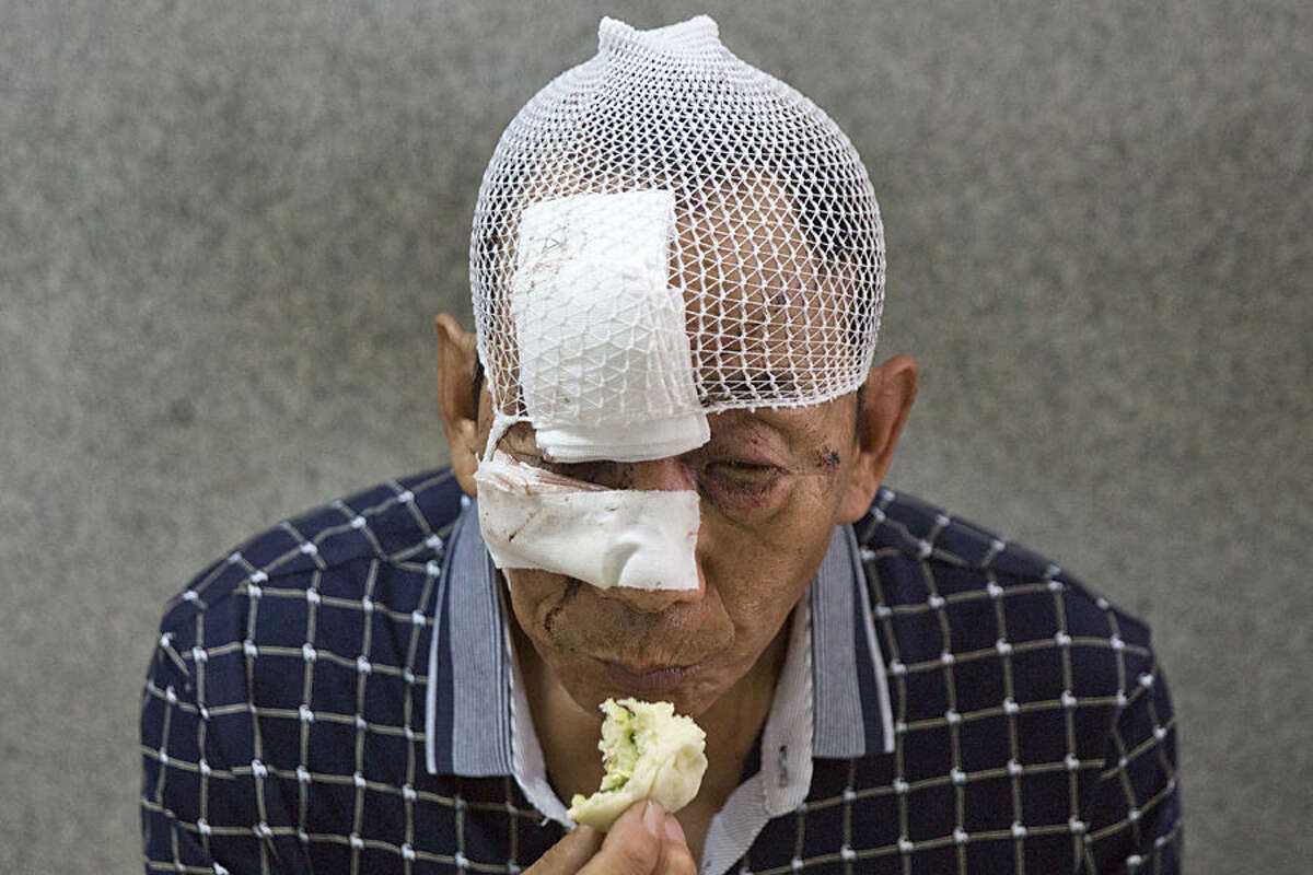 A man with his wounds bandaged eats a bun in a hospital receiving victims of an explosion in northeastern China's Tianjin municipality, Thursday, Aug. 13, 2015. Huge explosions in the warehouse district sent up massive fireballs that turned the night sky into day in the Chinese port city of Tianjin, officials and witnesses said Thursday. (AP Photo/Ng Han Guan)