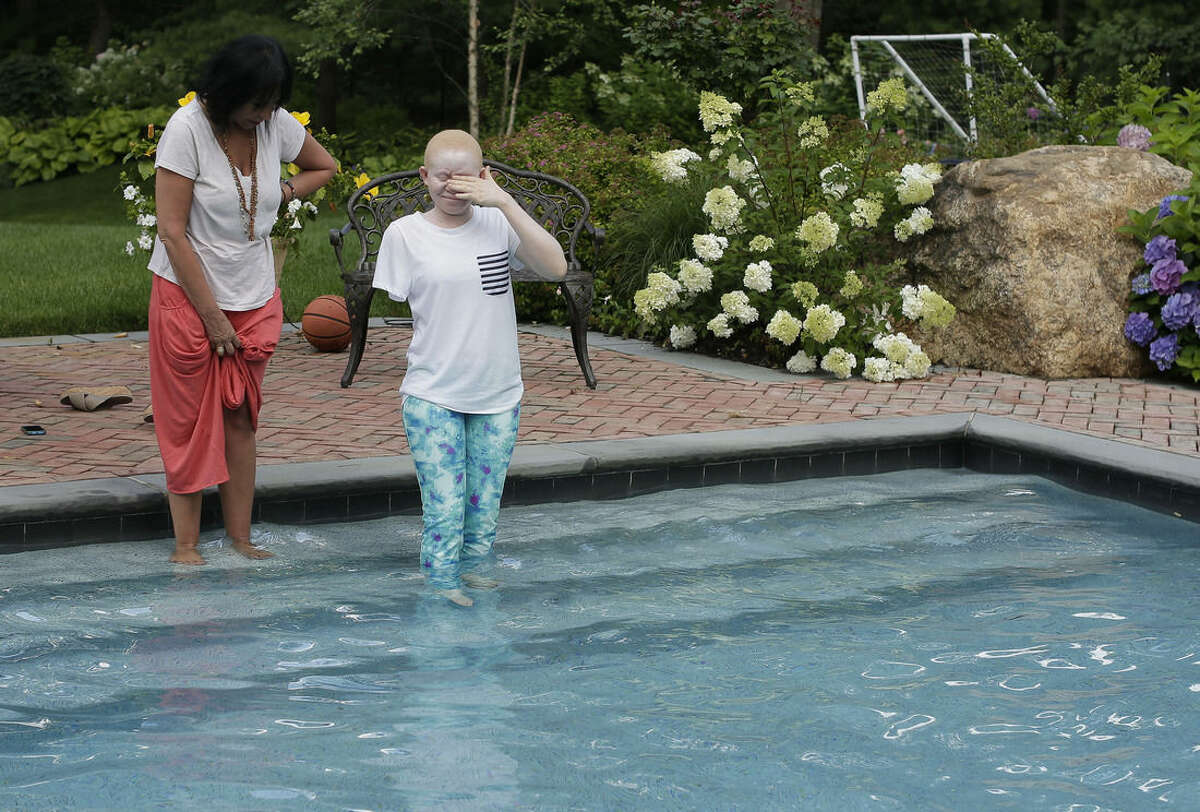 Kabula Masanja, right, of Tanzania, closes her eyes as she steps into a swimming pool for the first time with the encouragement of Elissa Montanati, founder and director of Global Medical Relief Fund, at a home in Oyster Bay, N.Y. on Monday, July 20, 2015. For Kabula and four other children from Tanzania with the hereditary condition of albinism, this was their first time swimming. (AP Photo/Julie Jacobson)