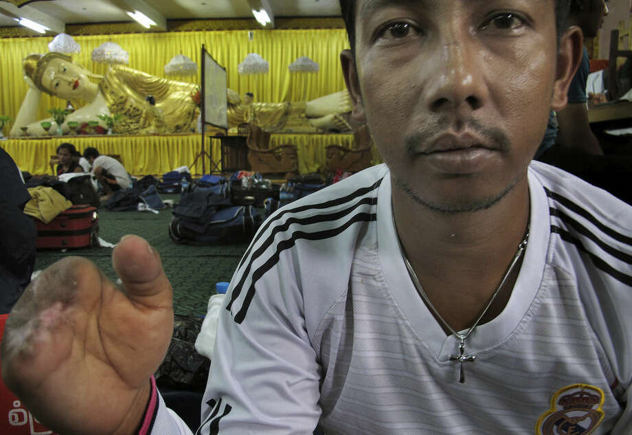 In this Sept. 6, 2015, photo, former slave-fisherman Tun Lin is seen at a transit center in Yangon, Myanmar. The 33-year-old one finger was ripped off while trying to wrangle an unwieldy net on the deck of his boat in eastern Indonesia, and the other three were crushed beyond saving. More than 2,000 fishermen have been rescued this year from brutal conditions at sea, their freedom prompted by an Associated Press investigation into seafood brought to the U.S. from a slave island in eastern Indonesia. (AP Photo/Robin McDowell)