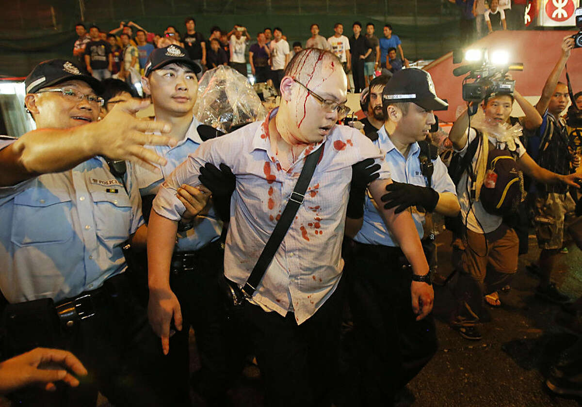 Police take an injured man from the confrontation of pro-democracy student protesters and angry local residents in Mong Kok, Hong Kong, Friday, Oct. 3, 2014. Pushing and yelling, hundreds of Hong Kong residents tried to force pro-democracy activists from the streets they were occupying Friday as tensions rose in the weeklong protests that have shut down parts of the city. (AP Photo/Wally Santana)