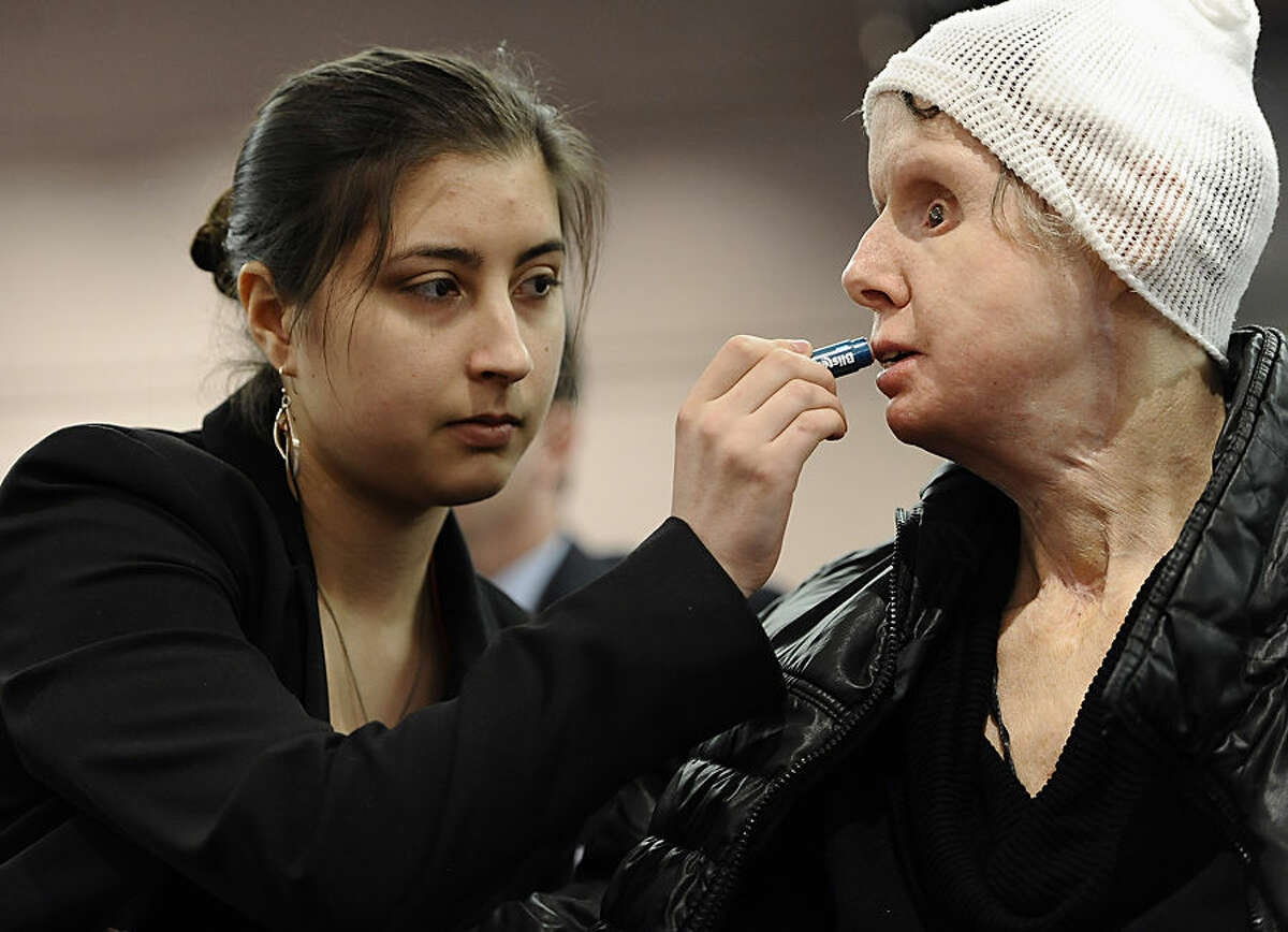 FOR USE AS DESIRED, YEAR END PHOTOS - FILE - Briana Nash, left, helps her mother Charla Nash, apply lip balm before speaking to Connecticut legislators at a public hearing at the Legislative Office Building, Friday, March 21, 2014, in Hartford, Conn. Nash was mauled by a friend's chimpanzee in 2009. (AP Photo/Jessica Hill, File)