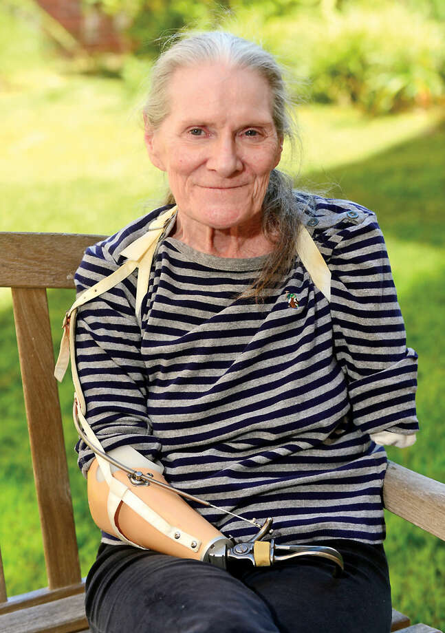 Hour photo / Erik Trautmann Anne Murray, victim of dog mauling, missing half her left arm and most of her right, talks about the attack and her attempts to get rehabilitation.