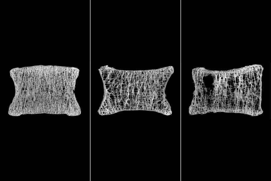 These CT scans show the progression of a patient's vertebra from normal bone density to moderate and severe osteoporosis. Photo: Courtesy Photo /New York Times / A. BOYDE AND P.D. MILLER