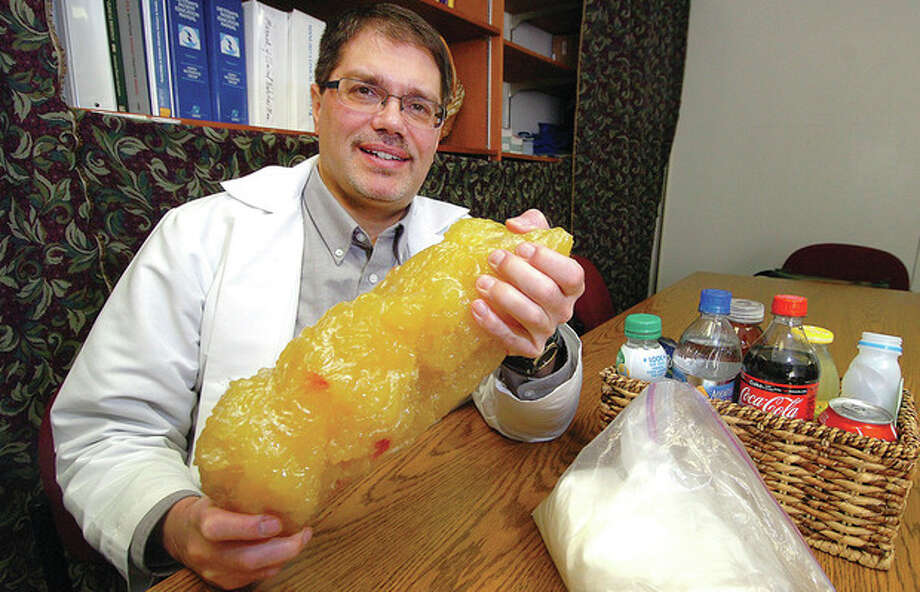 Hour photos / Alex von Kleydorff Peter McKnight, Norwalk Hospital's administrative manager of Clinical Nutrition & Bariatric Services, holds a model symbolizing five pounds of fat, which would triple if someone drinks three sugar-filled soft drinks a day for a year. / 2012 The Hour Newspapers